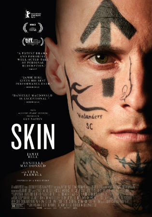 Skin 2018 BluRay 900Mb Hindi Dual Audio 720p Watch Online Full Movie Download bolly4u